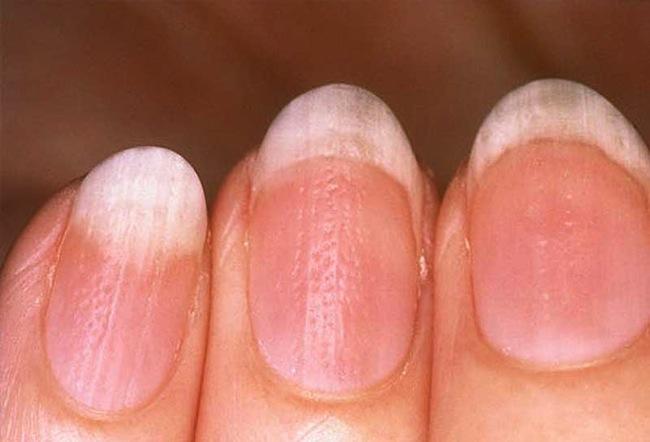 Как выглядит псориаз ногтей на руках